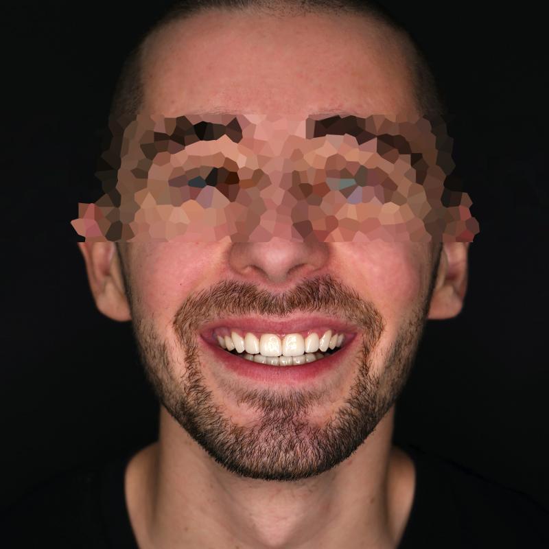 capa-desgaste-bruxismo-facetas-dentarias-cs0009