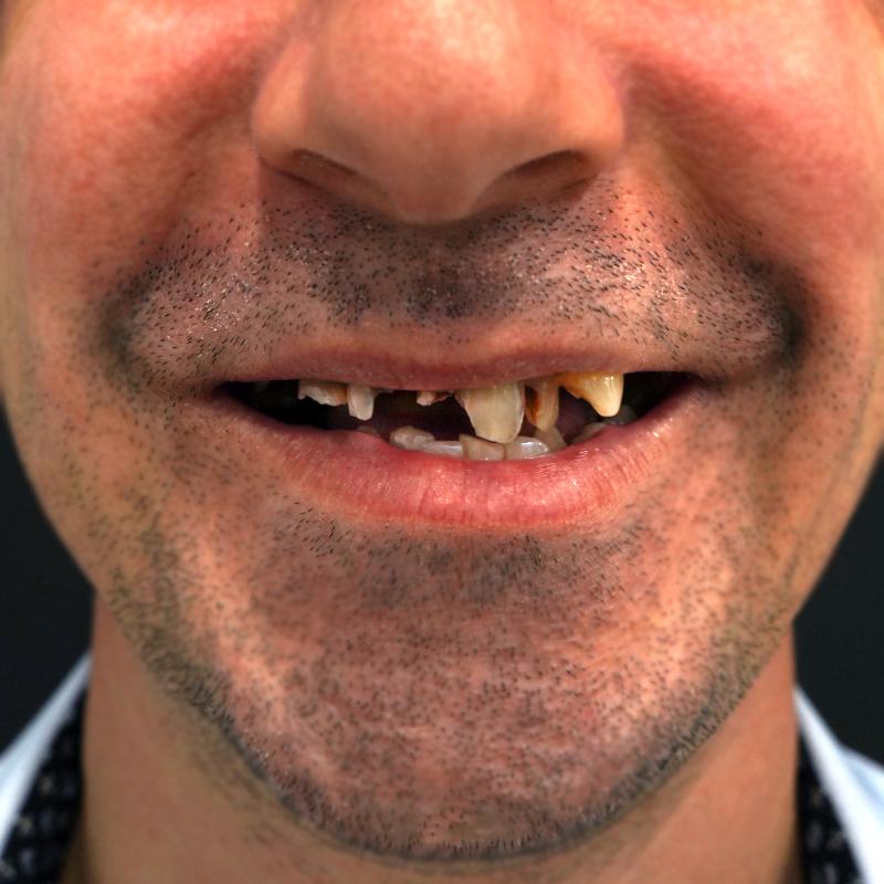 dentes-fixos-1-dia-antes-mario-matos-frente