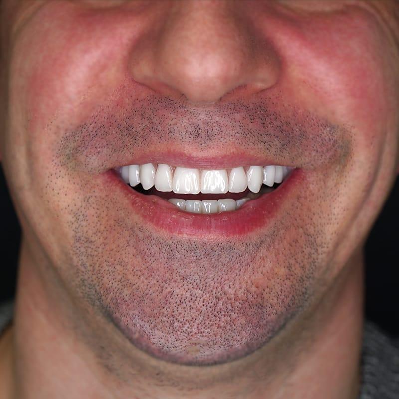 dentes-fixos-1-dia-depois-mario-matos-frente