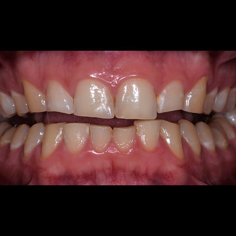 desgaste-bruxismo-facetas-dentarias-antes-depois-intra-orais-antes-cs0009