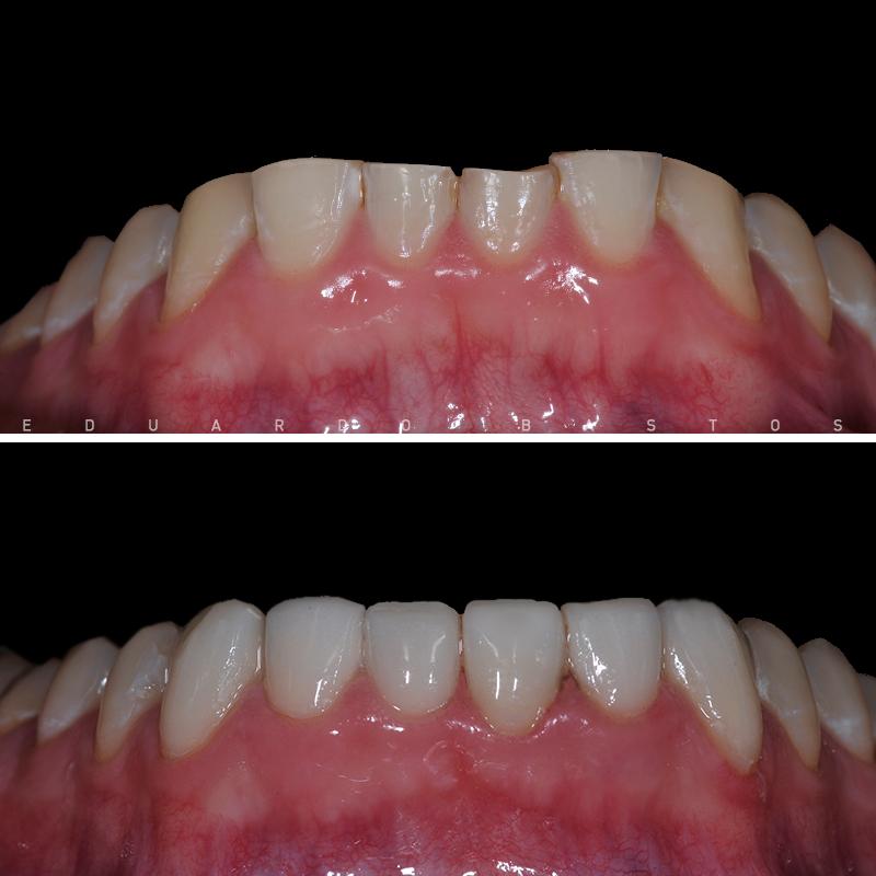 desgaste-bruxismo-facetas-dentarias-antes-depois-intra-orais-inf-cs0009