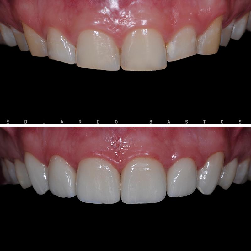desgaste-bruxismo-facetas-dentarias-antes-depois-intra-orais-sup-cs0009