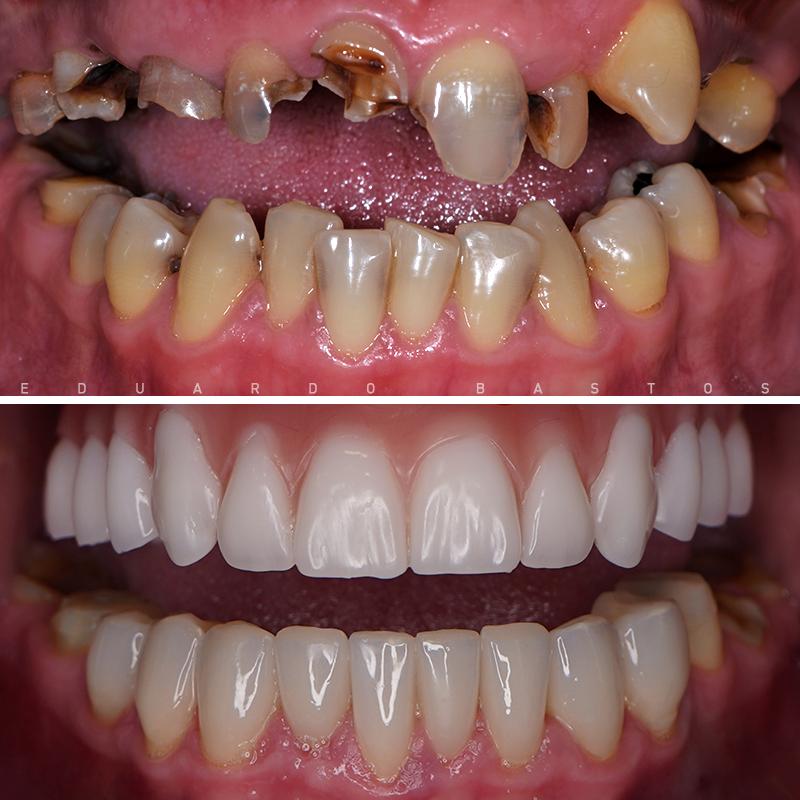 dentes-fixos-1-dia-portugal-mario-matos