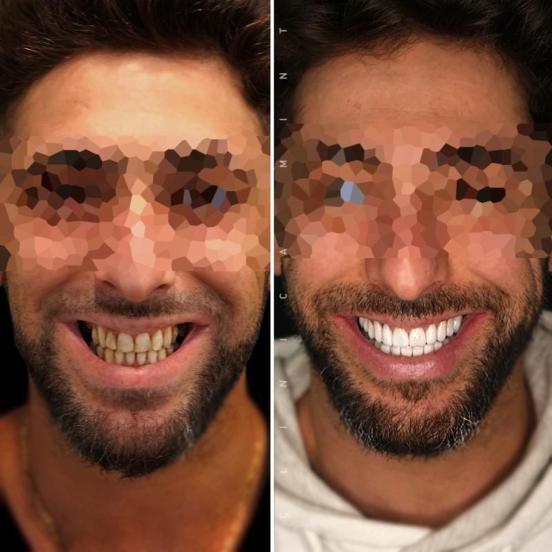 reabilitacao-oral-antes-depois-cs0007
