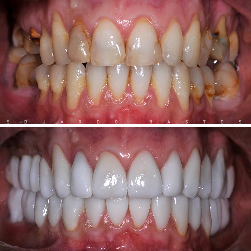 reabilitacao-oral-cs0007-intra-orais-frente