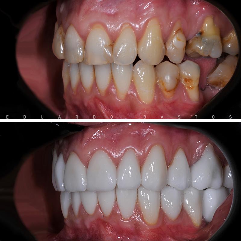 reabilitacao-oral-cs0007-intra-orais-ladoesq
