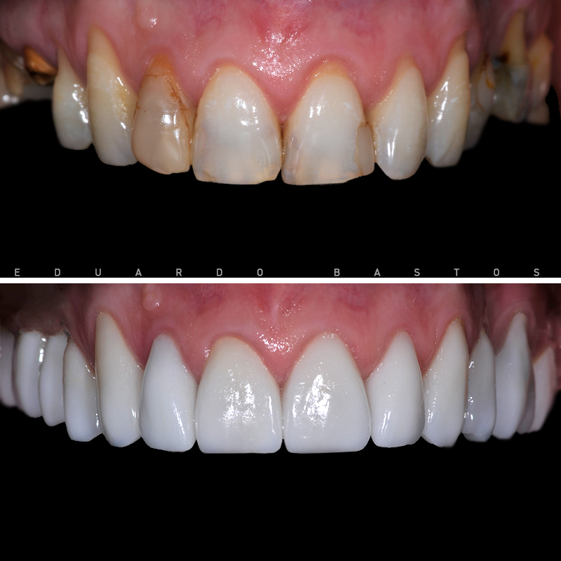 reabilitacao-oral-cs0007-intra-orais-superior-frente