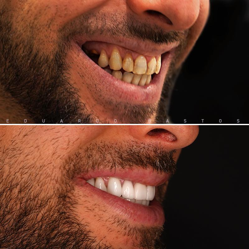 reabilitacao-oral-cs0007-sorriso-dto