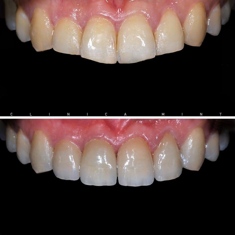 tratamento-aparelho-invisivel-antes-depois-intra-orais-olivia