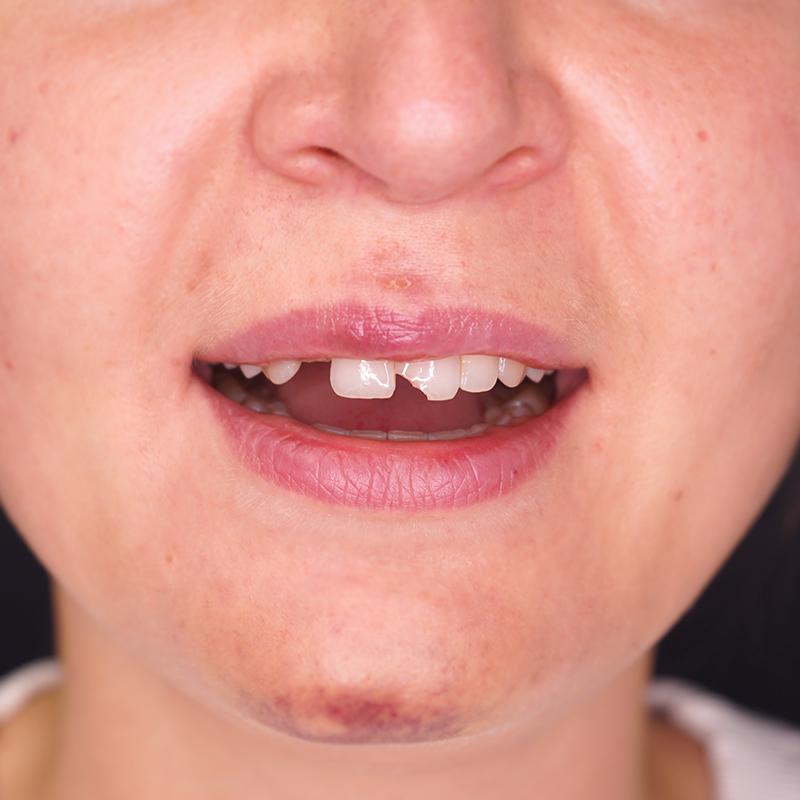 tratamento-dentes-partidos-facetas-dentarias-antes-cs0004-frente