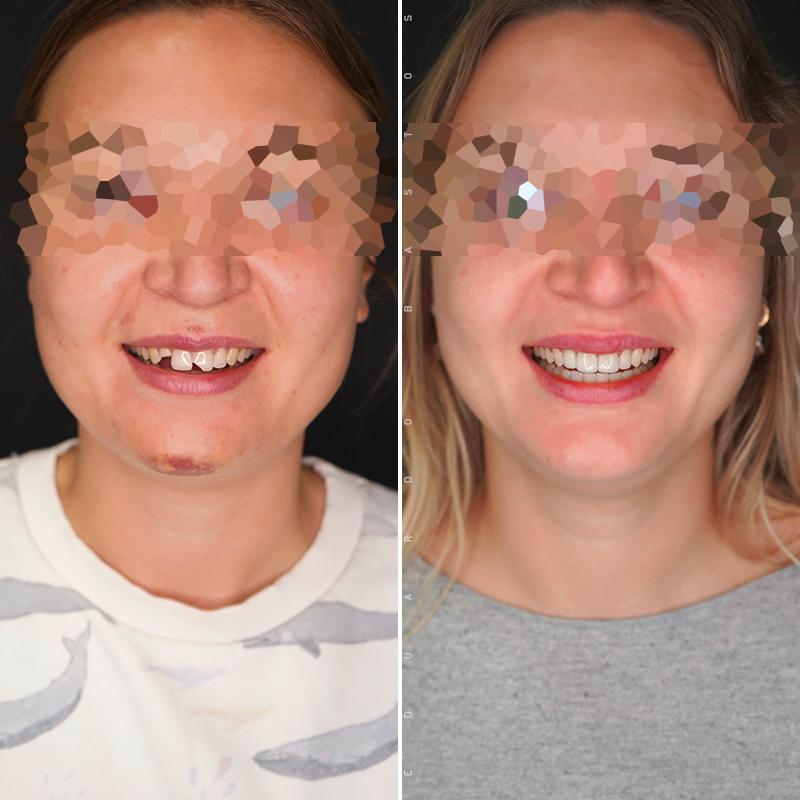 tratamento-dentes-partidos-facetas-dentarias-cs0004-01