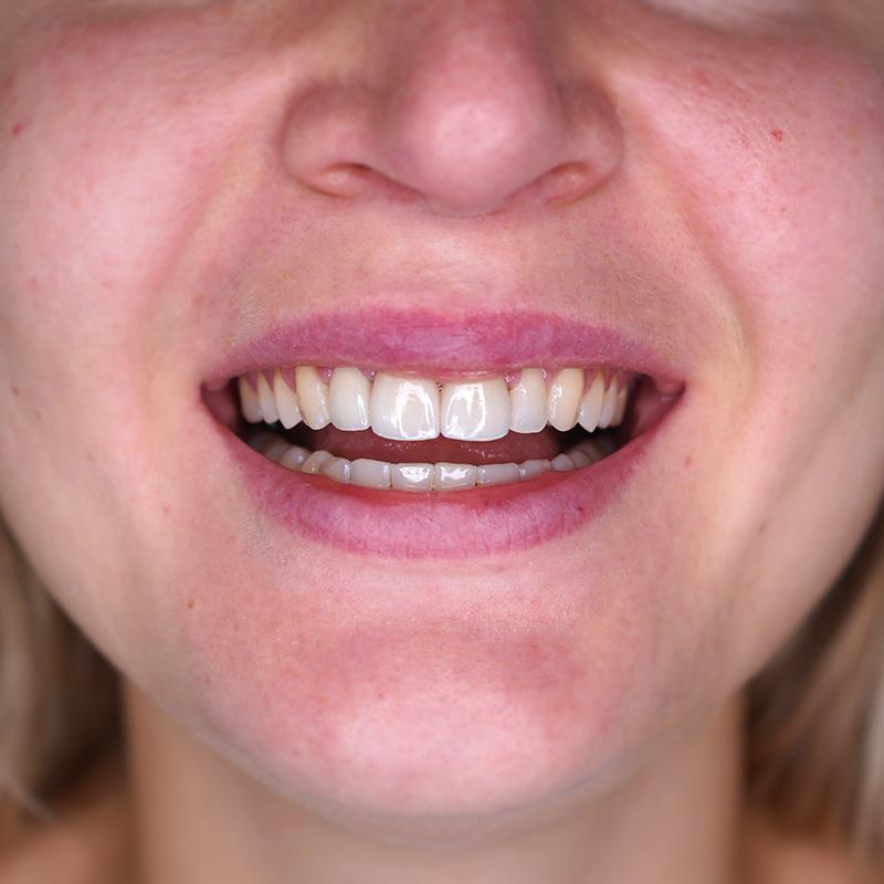tratamento-dentes-partidos-facetas-dentarias-depois-cs0004-frente.jpg
