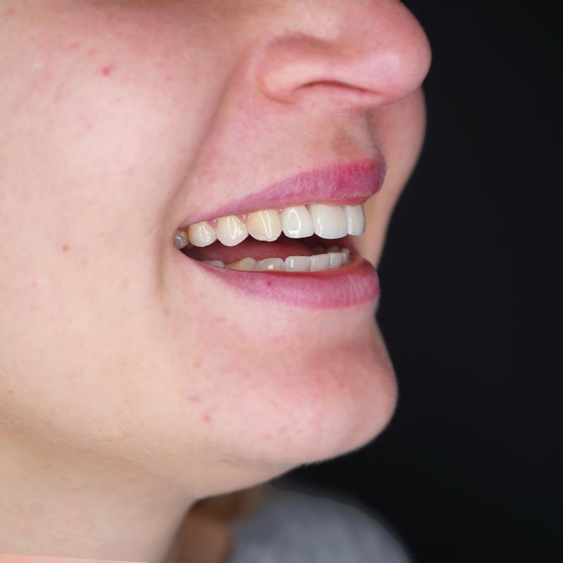 tratamento-dentes-partidos-facetas-dentarias-depois-cs0004-perfil