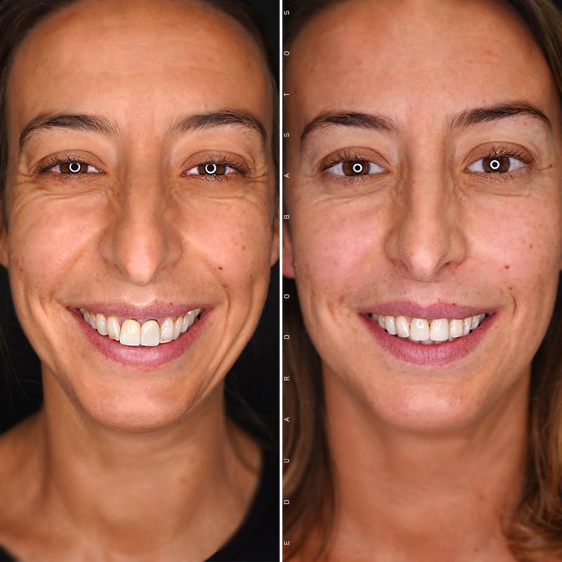 tratamento-enxerto-gengival-antes-depois-tania-gaiao
