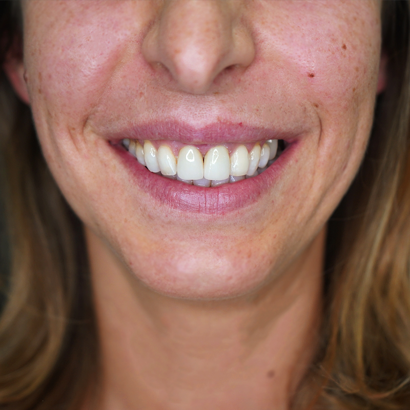 Como tratar gengivite: entenda quais os sintomas e tratamentos