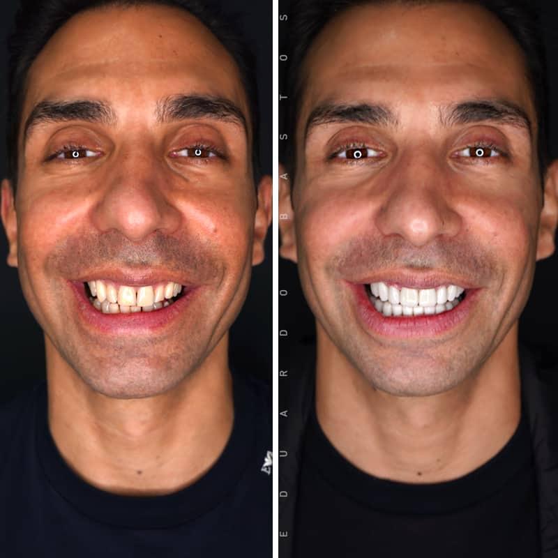 tratamento-facetas-dentarias-portugal-joao-martins-frente