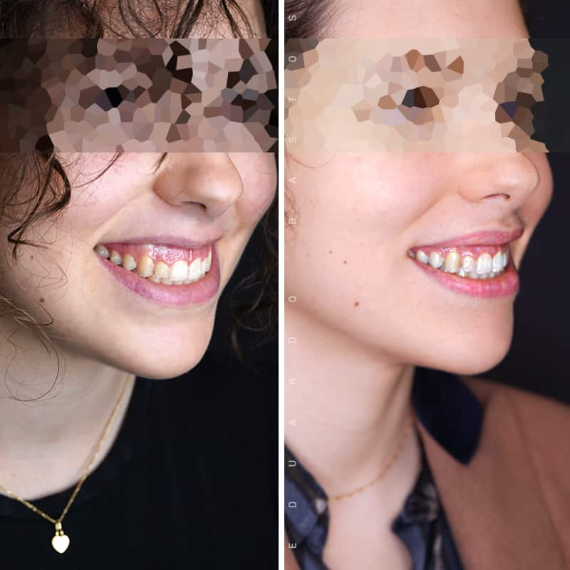tratamento-sorriso-gengival-sara-serra-01