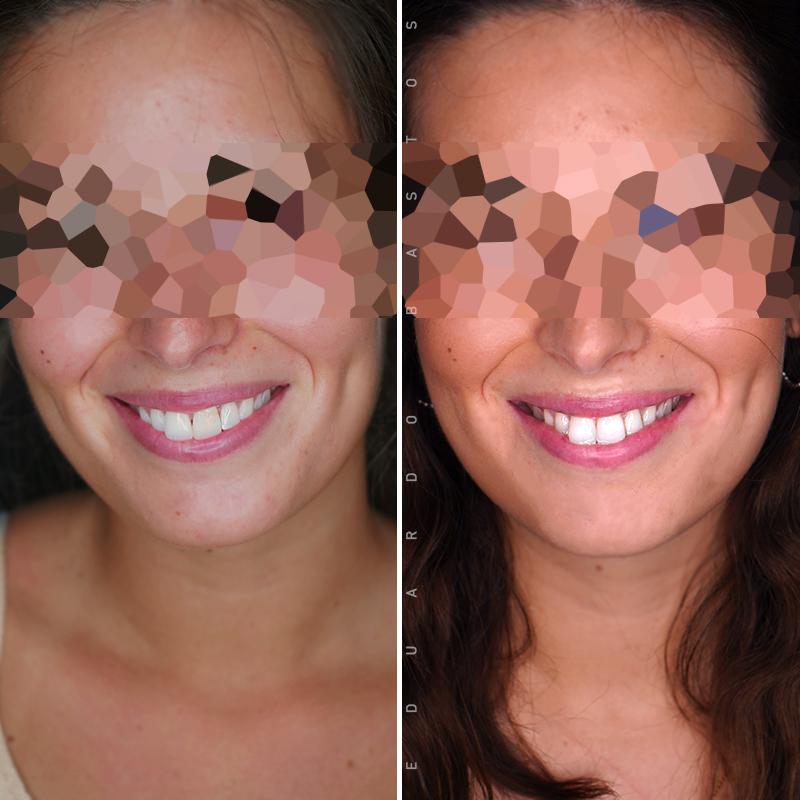tratamento-dente-escuro-faceta-dentaria-cs00012-FACE-FRENTE-vf
