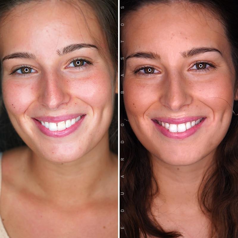 tratamento-dente-escuro-faceta-dentaria-cs00012-FACE-FRENTE