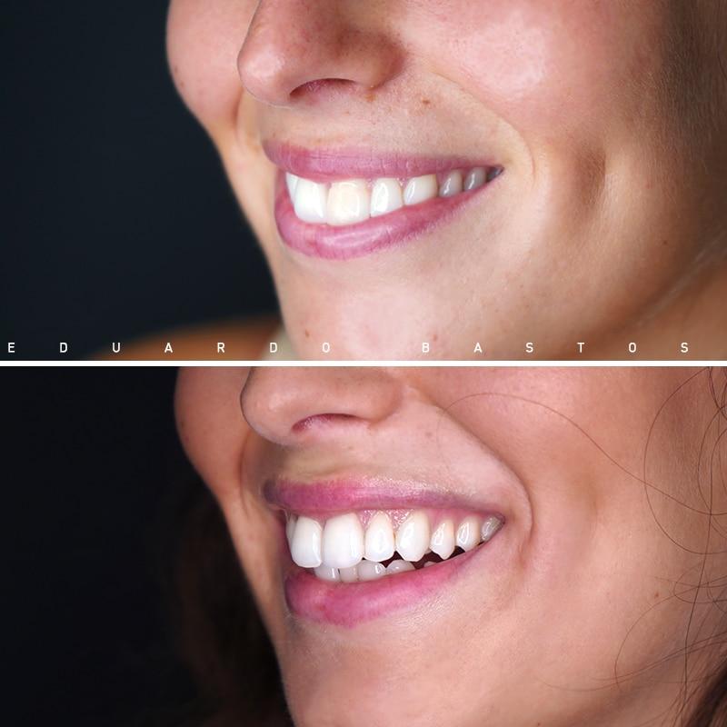 tratamento-dente-escuro-faceta-dentaria-cs00012-SORRISO-LADO-ESQ.