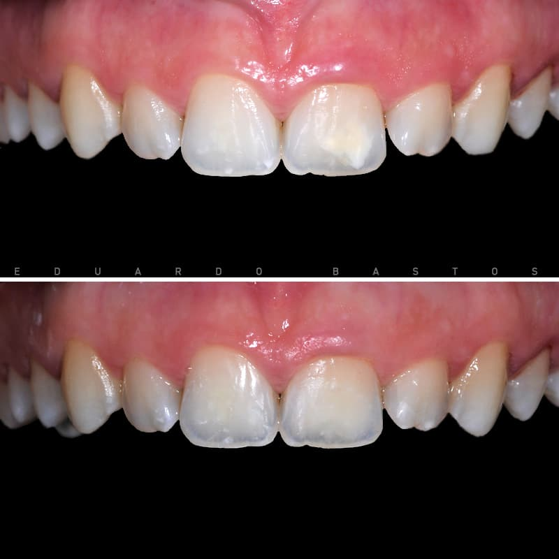 tratamento-manchas-nos-dentes-cs0014.jpg