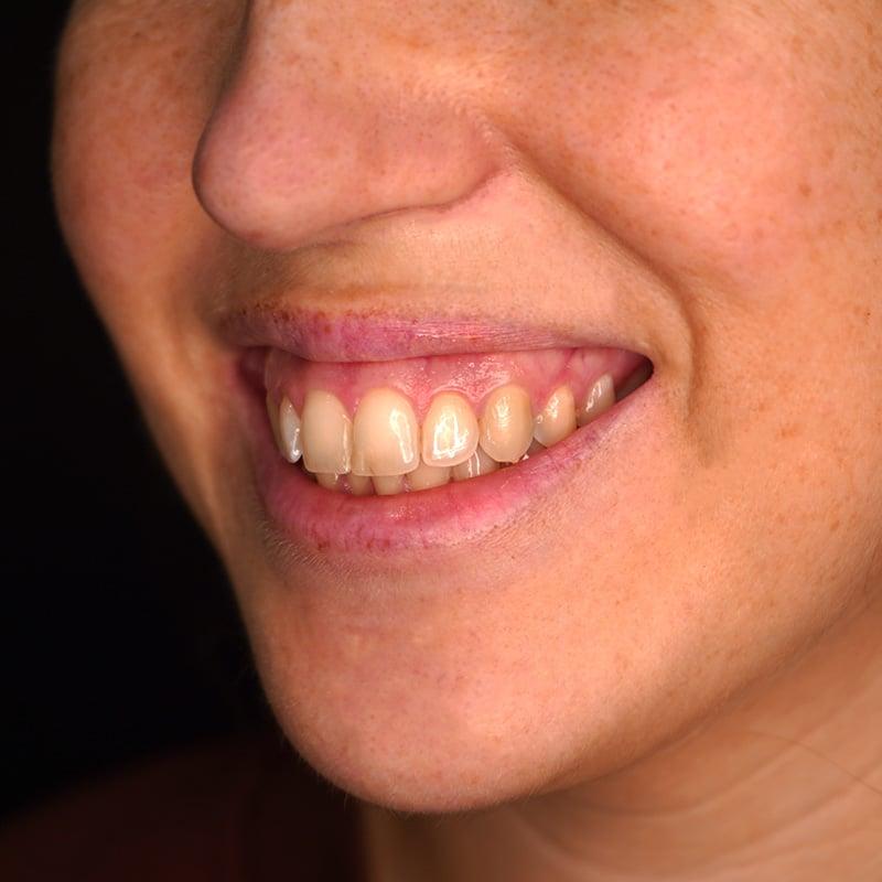 tratamento-sorriso-gengival-CS0015-sorriso-lado-antes.jpg