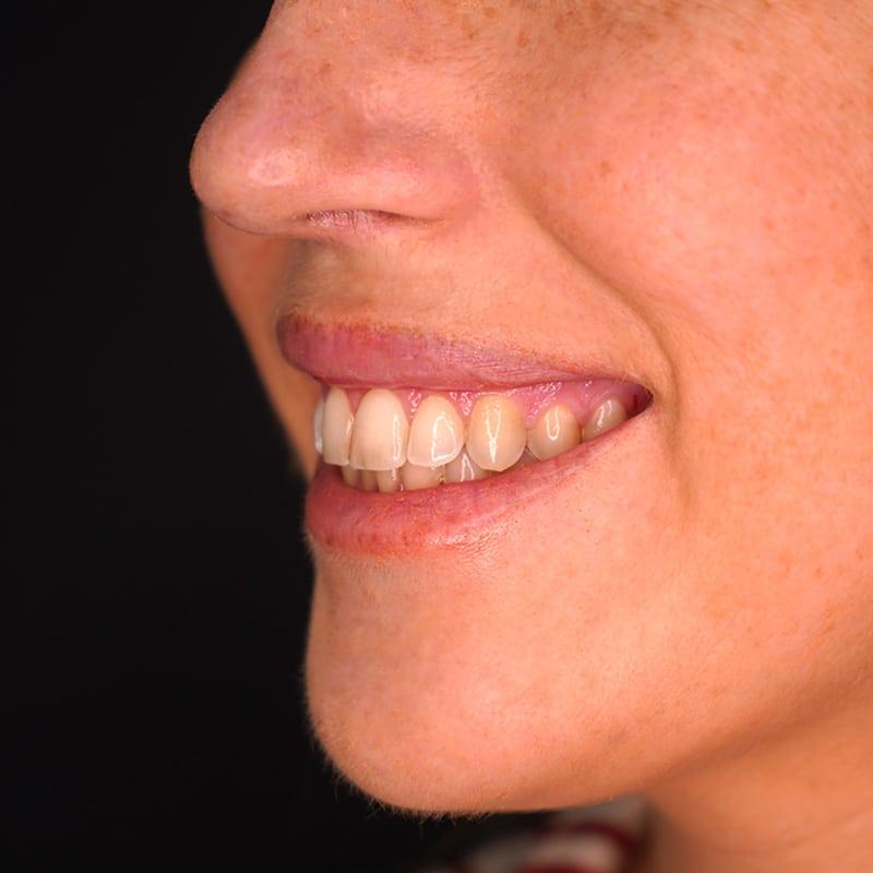 tratamento-sorriso-gengival-CS0015-sorriso-lado-capa.jpg