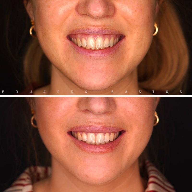 tratamento-sorriso-gengival-CS0015-sorrisofrente-AD.jpg