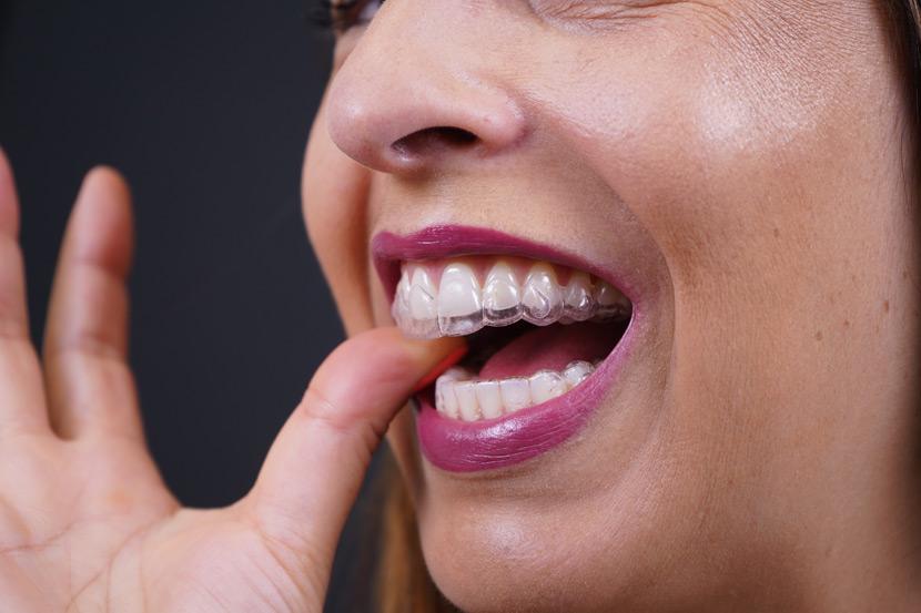 colocar aparelho invisivel dentes Clinica Mint