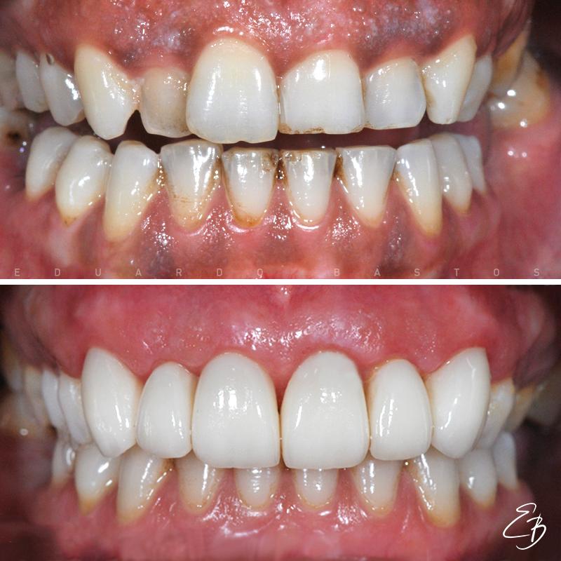 facetas-dentarias-intra-orais-cs0018