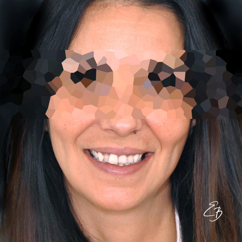 facetas-dentarias-sorriso-antes-cs0018-vf