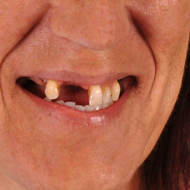 Dentes Fixos em 1 Dia