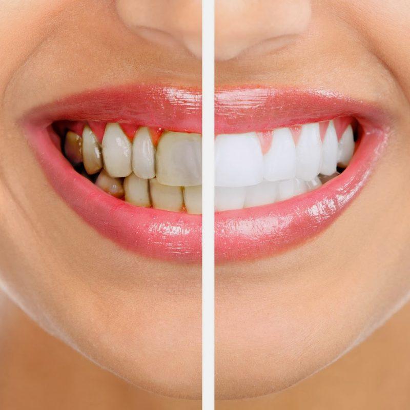 limpeza oral placa tartaro lisboa