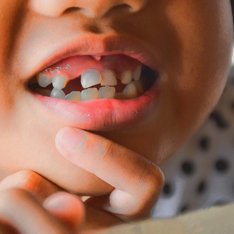 problemas dentarios criancas bebes mais comuns